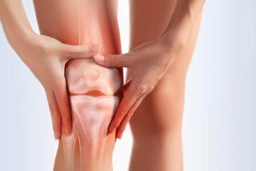 What's the Best Type of Exercise to Prevent Knee Osteoarthritis?