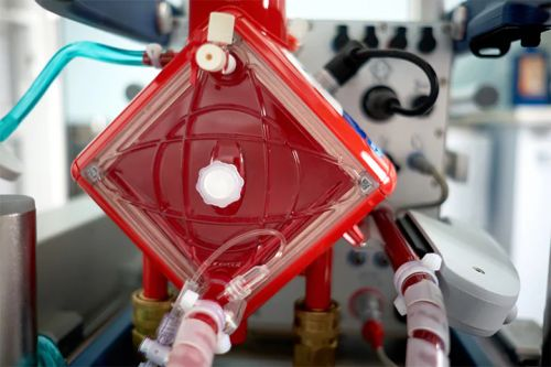ECMO Survival Rate 'Reasonable' in COVID-19