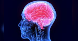 Treatment for ischemic stroke differs by race, ethnicity, health insurance status