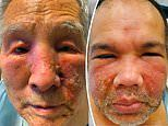 Two men developed PUS-FILLED bumps on their faces in rare side effect from Moderna COVID-19 vaccine