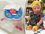 Farmer spends four hours EVERY DAY bathing her daughter: Nine-month-old has a rare skin condition