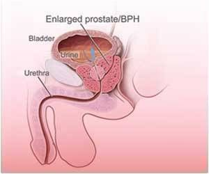 Finasteride Does Not Increase Risk of Prostate Cancer Death