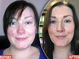 Mother-of-two, 33, says water bottled near Balmoral healed her red and firey rosacea