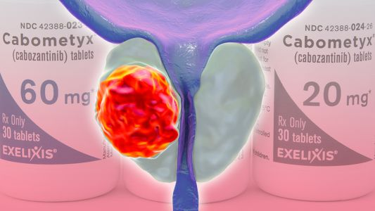 More Benefit With Taxane for Aggressive Metastatic Prostate Cancer
