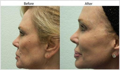 Facelift Surgery in Santa Barbara by Dr. Perkins