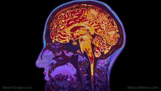Carnosine, a natural compound, slows down brain tissue damage