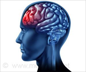 Early Intervention after Traumatic Brain Injury More Likely to Reduce Epilepsy Risk
