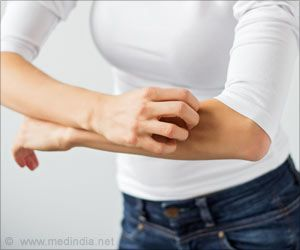 Link Between Acute Itching and Environmental Allergens