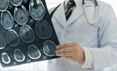 Astaxanthin supplement shows promise in brain health category: Two studies