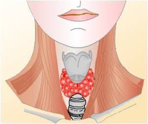 Depression, Anxiety Linked With Chronic Thyroid Disease