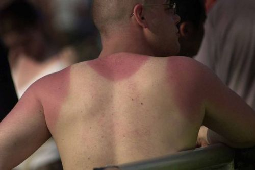 How to treat sunburn and what to do if you are peeling or blistering