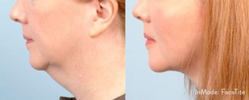 Benefits of BodyTite and FaceTite