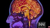 Aluminum in vaccines linked to Alzheimer's and other neurological conditions