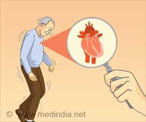 Damage to Heart Nerve Cells can Identify Parkinson's Disease