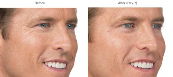 What's the Difference Between Botox and Fillers?
