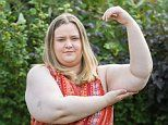 Woman with giant arms and legs pleas for £19k