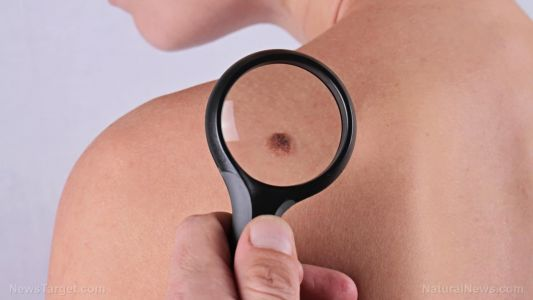 Do your moles put you at risk of melanoma? Find out through ABCDE