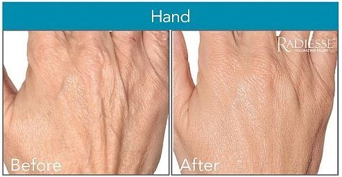 ARE YOUR HANDS ANNOUNCING YOUR AGE?