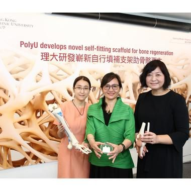 Hong Kong Researchers Debut Novel Self-fitting Scaffold for Bone Regeneration