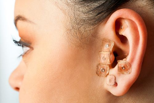 Ear acupuncture effective at improving, maintaining effectiveness of substance abuse treatment outcomes