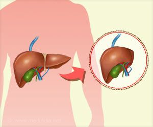 Transplanted Livers can Help Lower Risk of Organ Rejection