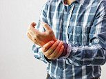 Gout increases the risk of having a deadly heart attack or stroke by 15%, study reveals