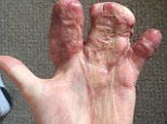 Firefighter's mangled hand was sewn inside his ABDOMEN