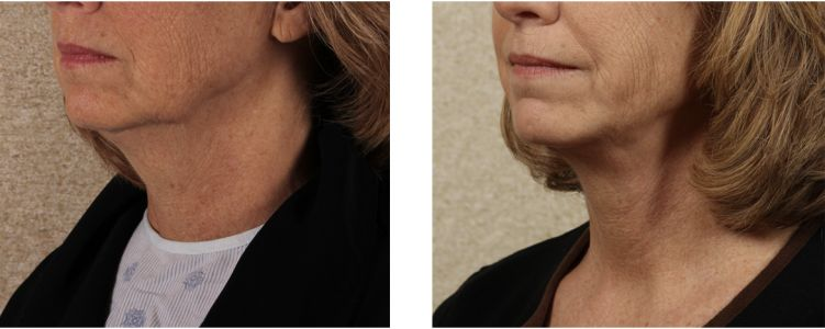 Neck Lift Options: Which One Do You Need?