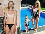 Mother-of-two reveals how she overcame anorexia to have children