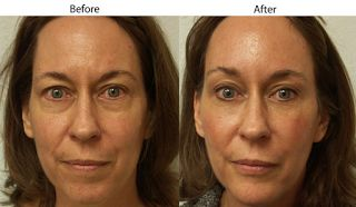 Forehead Lift Plastic Surgery Renews Your Look