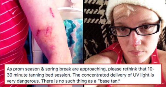 After 86 Skin Cancer Surgeries, This Woman Has A Warning We All Need To Hear