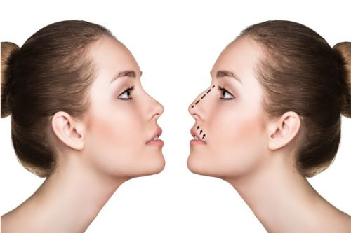 Factors to Consider When Considering Nose Surgery Abroad?