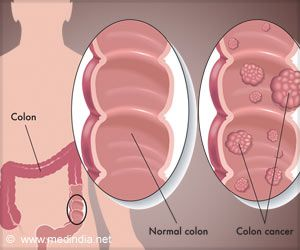 Simple Test can Help Identify Risky Patients for Colorectal Cancer