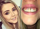 Mother claims her gums were 'severely burned' following a botched teeth whitening procedure