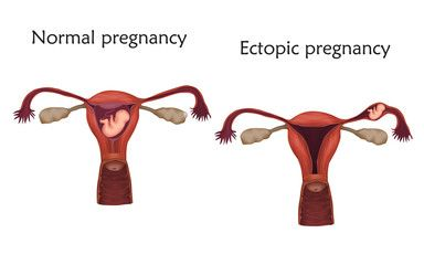 Ectopic Pregnancy: Symptoms, Causes, Risks and Treatment