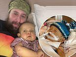 Dad loses 40 pounds so he can donate part of liver to son who needed life-saving transplant