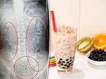 Bubble tea lover, 14, has more than 100 tapioca balls stuck in her belly
