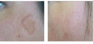 Benefits of Automated Micro-Needling for the Skin