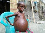 Boy whose stomach has bloated to the size of 2 FOOTBALLS