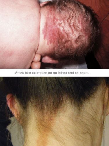 Stork Bite: What You Need to Know About This Birthmark