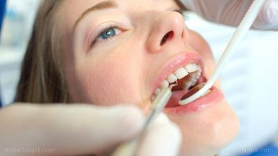 Gum disease - A safe and natural solution