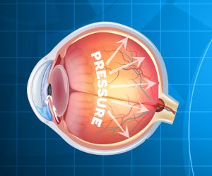 Newly Approved Glaucoma Drugs Greatly Reduce Eye Pressure