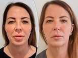 Woman who had lip fillers reveals how treatment left her with nightmare 'trout pout' for THREE YEARS