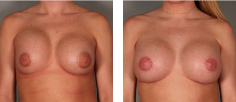 Common Reasons for Breast Revision