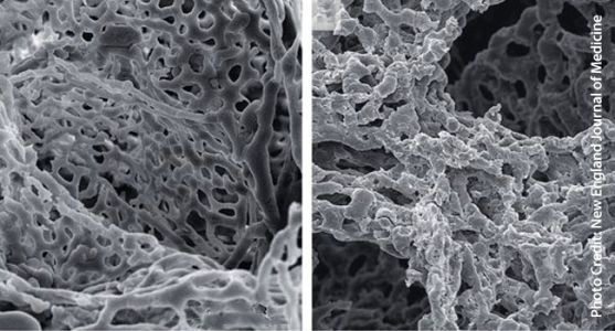 Blood Vessels in Lungs Split in Response to COVID-19