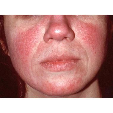 New Standard Classification for Rosacea Published