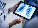 X-ray scans powered by AI could slash waiting times for expert diagnosis