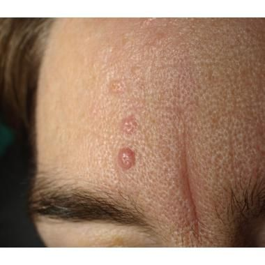 Study of Nano-Pulse Stimulation for Sebaceous Hyperplasia Launched