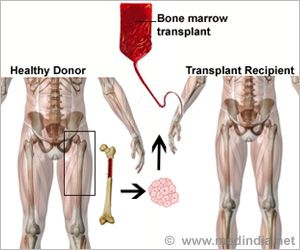 New Nanomaterial Could Abandon Bone Marrow Transplantation in the Future