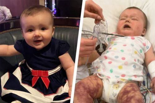 Baby has feet amputated after developing sepsis on holiday